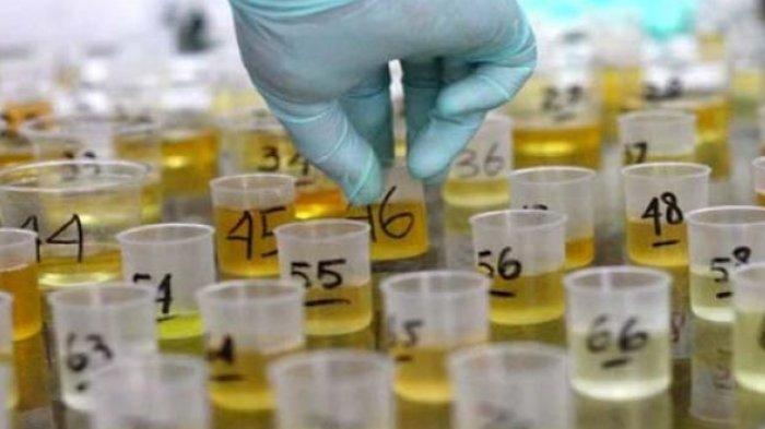 Waspada bila Urine Jernih! Kondisi Kesehatan Bisa Dilihat dari Warna Air Seni