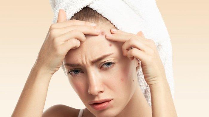 Kerap Ganggu Penampilan, Simak Cara Tuntas Membasmi Jerawat dan Wajah Berminyak