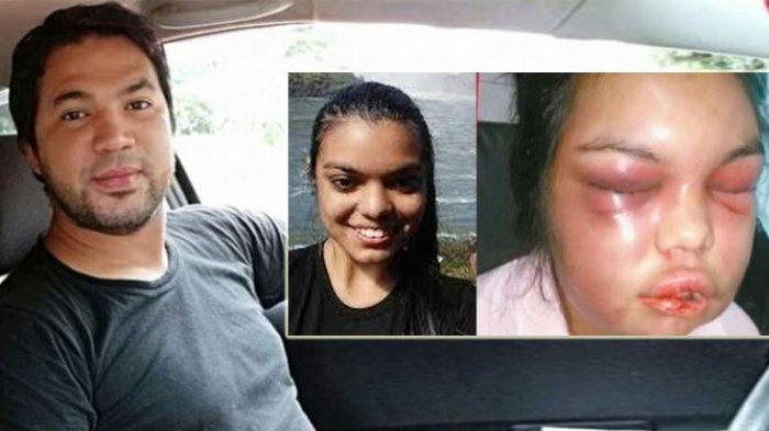 Edan! Wajah Wanita Ini Babak Belur Dipukuli Suami Gara-gara Like Facebook! Begini Kejadiannya!