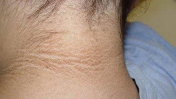 Jangan Sepelekan Kulit Leher Menghitam dan Menebal, Ternyata Menjadi Tanda Penyakit Berbahaya Ini!