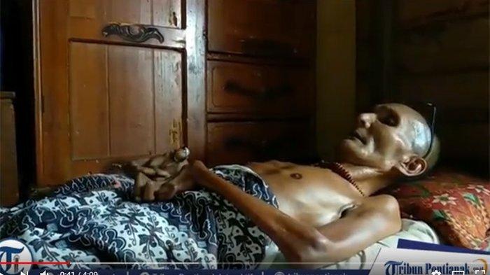 Kisah Munir, Selama 24 Tahun Tubuhnya Tak Bisa Ditekuk, Kaku seperti Kayu