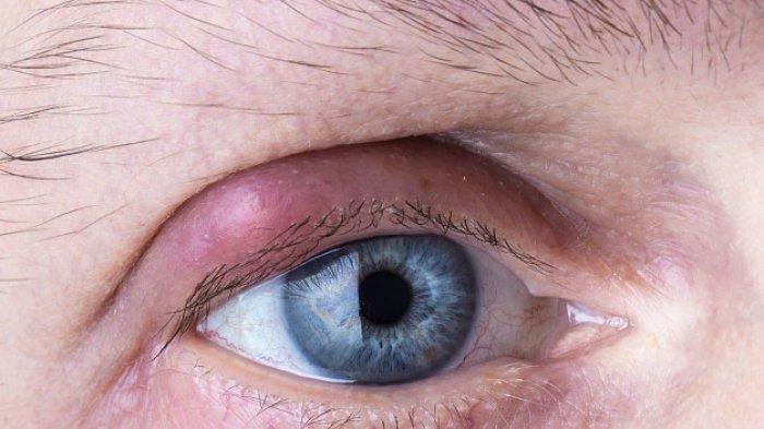 Mata Bintitan karena Mengintip? Ini Penjelasan Medis Berikut Penyebab dan Cara Mengobatinya