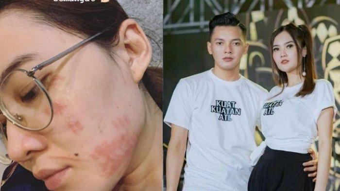 Kabar Sedih dari Nella Kharisma, Alami Insiden saat Hamil 8 Bulan, Wajah Cantiknya Merah