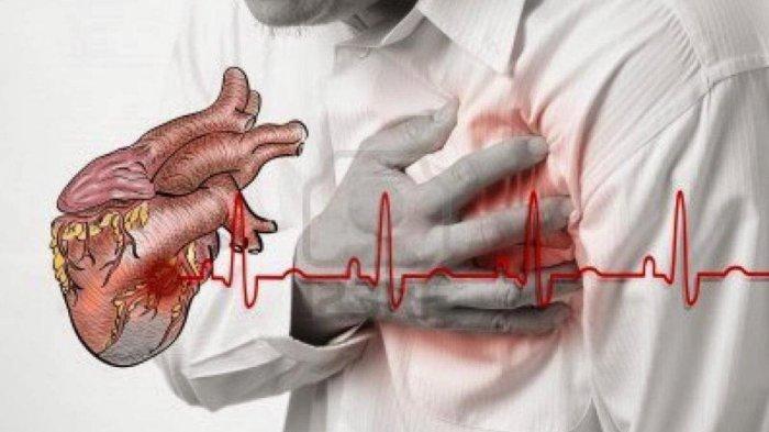 5 Faktor Pemicu Serangan Jantung yang Jarang Disadari, Termasuk Emosi & Aktifitas Fisik Mendadak