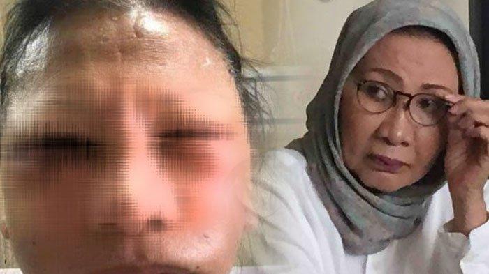 Polisi Cek Rumah Sakit, Tak Temukan Pasien Nama Ratna Sarumpaet