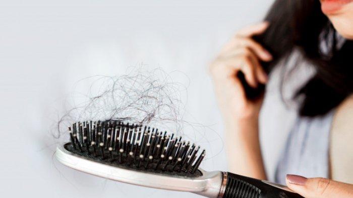 RAMBUT RONTOK - Ada banyak faktor penyebab rambut rontok, pahami cara mengatasinya. FOTO: ILUSTRASI