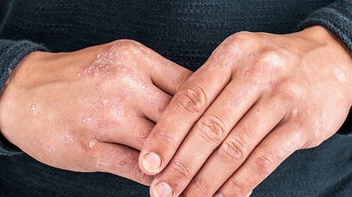 WAJIB TAHU Begini Gejala dan Ciri-ciri Kanker Kulit, Waspadai Tahi Lalat Berbentuk tak Beraturan
