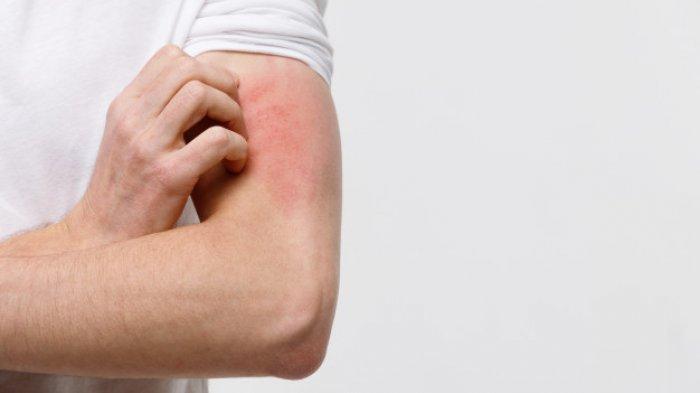 Apa Itu Covid Arm? Efek Samping Vaksin Virus Corona yang Menyerang Kulit