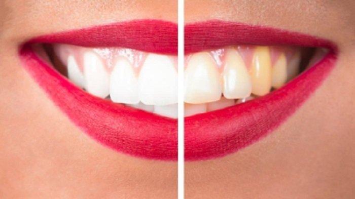 Berikut Ini 6 Obat Tradisional untuk Memutihkan Gigi, Silahkan Dicoba