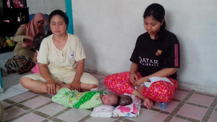 Bantuan Mulai Mengalir untuk Bayi yang Menderita Benjolan Besar di Kepala