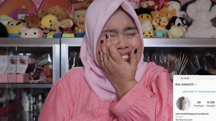 Jempol Kaki Kekiyi Terinjak Sapi hingga Masuk RS, Lalu Curhat: Lebih Baik Sakit Hati karena Mantan