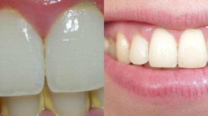 Cuma Pakai Lemon, Hilangkan Karang Gigi Semudah Membalikkan Tangan, Ini Caranya!