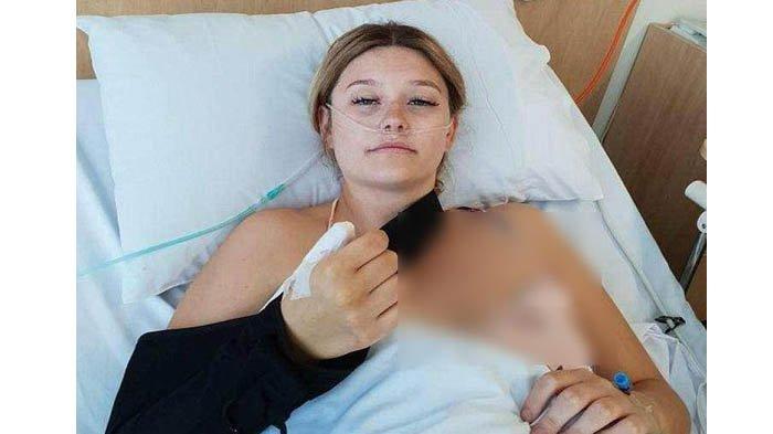 Kebiasaan Gigit Kuku, Jari Gadis Ini Terpaksa Dipotong, Hasil Diagnosa Ternyata Alami Penyakit Ini