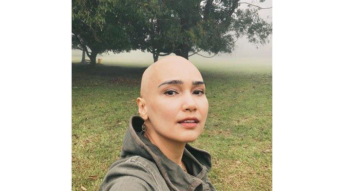 Semangat Feby Febiola Melawan Kanker Ovarium: Saya Yakin, Mau Lewat Jalan Manapun, Jalani Aja