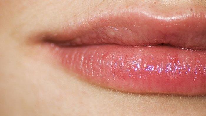 Bibir Gelap Bisa Kembali Pink Alami dalam Seminggu dengan Bahan-bahan Ini, Begini Caranya