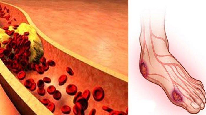 Diabetes Dapat Sebabkan Keringat Berlebih, Benarkah? Simak Penjelasannya