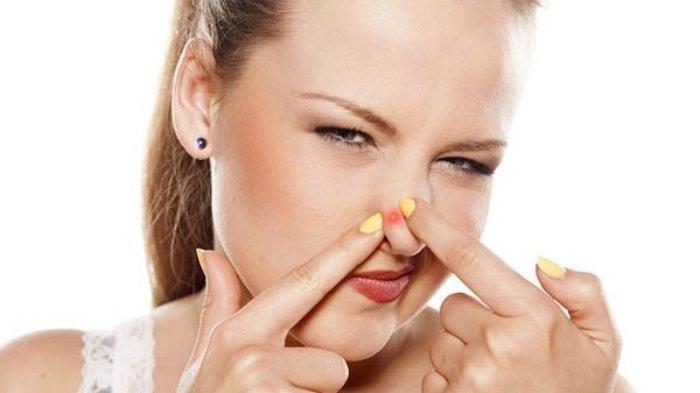 Jangan Dipencet! 5 Cara Ampuh Mengatasi dan Mencegah Jerawat di Hidung secara Alami