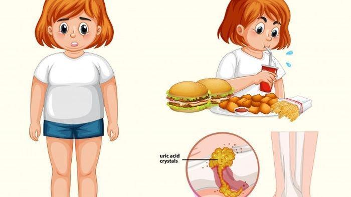 5 Jenis Makanan Ini Pantang Dikonsumsi Penderita Asam Urat!