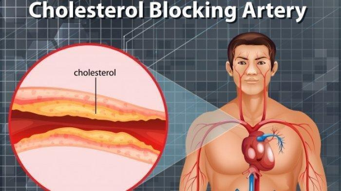 Kesemutan Hingga Nyeri di Dada, Kenali Tanda Kolesterol dan Tigliserida Naik, Ini Cara Mengobatinya
