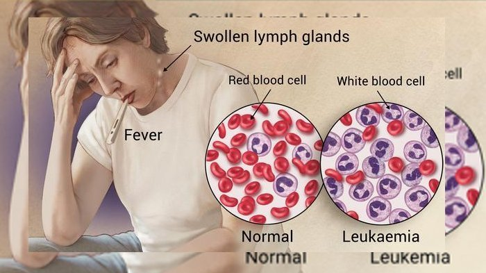 Termasuk Penyakit Ganas, Ketahui 5 Fakta Leukemia dari Gejala, Penyebab hingga Pengobatannya