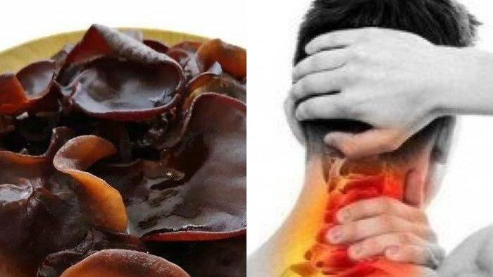 Tuntaskan Kolesterol dengan Cepat, Simak Deretan Jamur yang Kaya Manfaat!