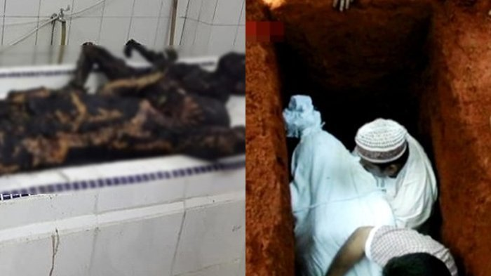 Harus Dibongkar Setelah 30 Menit Dikubur Karena Salah Lokasi, Kondisi Jenazah Ini Mengerikan