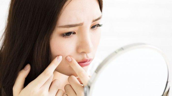 13 Tips Jitu ini Ternyata Bisa Cegah Jerawat di Wajah, Ingat Jangan Dipencet, Dicoba Yuk
