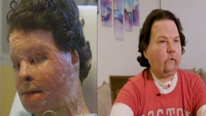 80 Persen Tubuhnya Luka Bakar, Pria Ini Berhasil Transplantasi Wajah dan Tangan Ganda