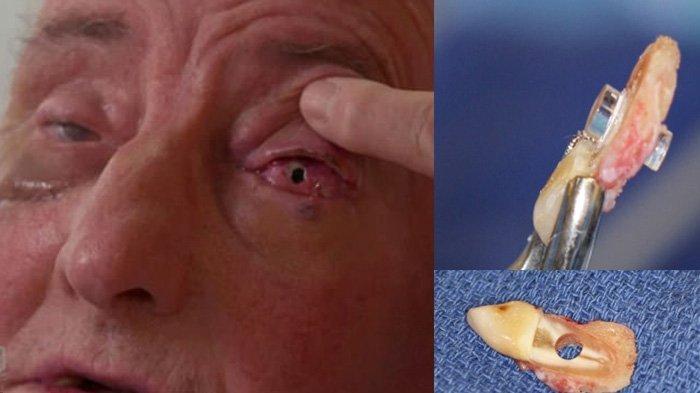 Gigi Dimasukkan ke Mata, Kakek Buta Bisa Melihat Lagi