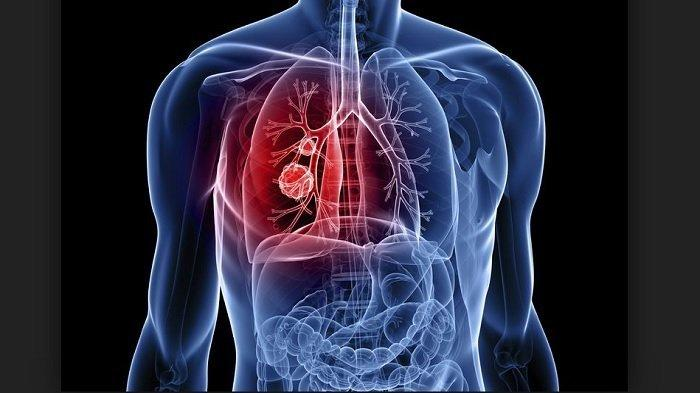 Cara Alami Mencegah Kanker Paru-paru, Konsumsi Makanan Ini Selain Diet dan Olahraga