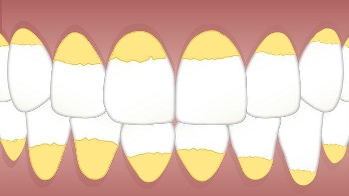 Beragam Cara Bisa Kamu Lakukan di Rumah untuk Menghilangkan Karang Gigi, Coba Pakai Kulit Jeruk