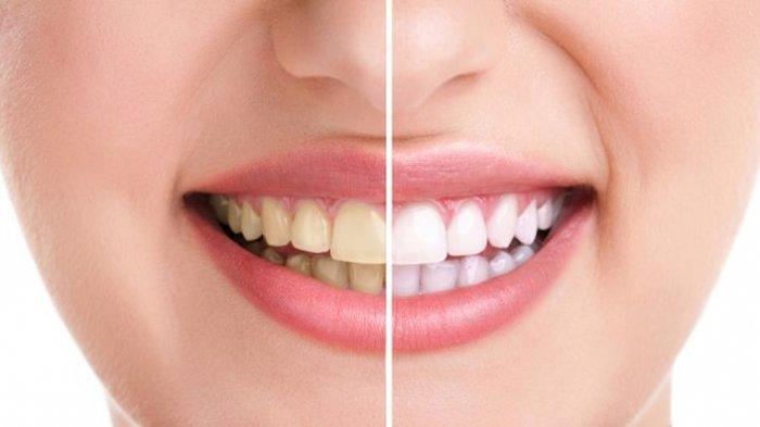 Ini Cara Alami Ampuh Putihkan Gigi Tanpa Harus Scalling untuk Membersihkan Karang Gigi