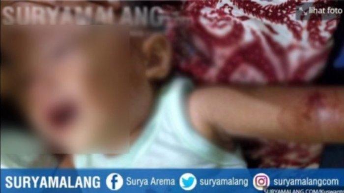 Asyik Suapi Bayinya Makan di Halaman, Ibu Kaget Lengan Kiri Anaknya Tertembak Peluru Nyasar