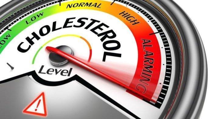 Empat Cara Jitu Menurunkan Kolesterol yang Naik karena di Rumah Saja saat PSBB Pandemi Covid-19
