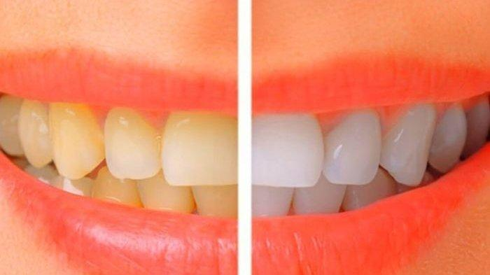 Cara Putihkan Gigi Kuning dalam 3 Menit dengan Bahan Dapur Rumahan!