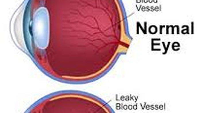 Kenali Ciri Fisik Seseorang Menderita Diabetes, Bisa Dideteksi dari Mata!