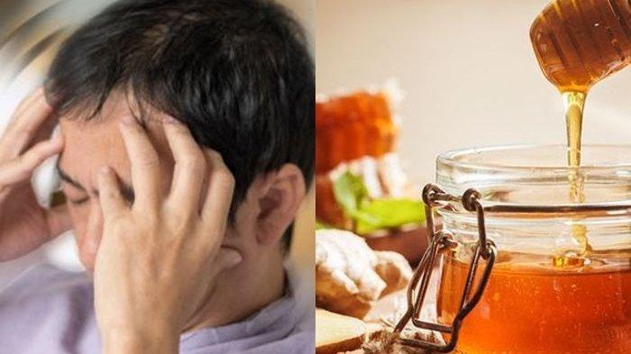 Vertigo Tiba-tiba Menyerang? Pakai Obat Alami Ini Ampuh Hilangkan Sakit Kepala Seketika