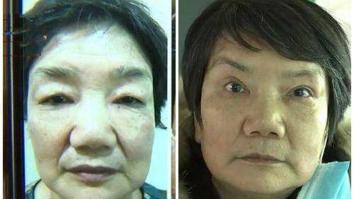 Nenek Shen diusir suaminya dari rumah setelah operasi plastik yang habiskan ratusan jutanya gagal total