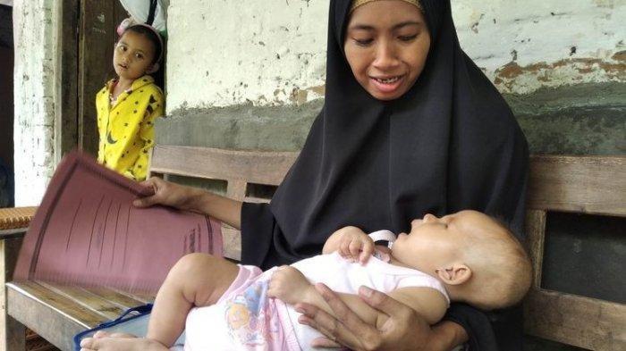 Bayi Lahir Tanpa Bola Mata, Ibunya Rasakan Ini Saat Hamil, Tak Tahu Apakah Bisa Disembuhkan