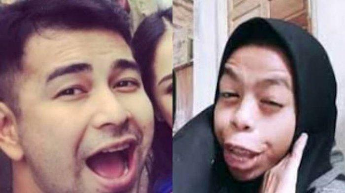 Nurrani Beberkan Honor Jadi Seleb Dadakan, Raffi Ahmad Langsung Kaget!