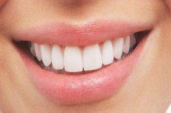 Gigi Langsung Putih Cuma Pakai Bahan Tradisional, Boleh Dicoba Sekarang!