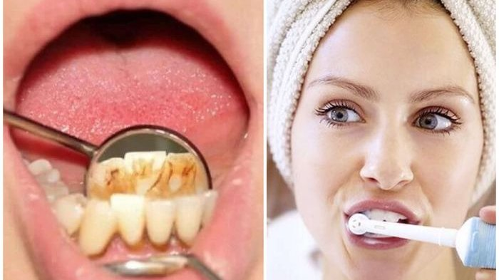 Tak Sempat ke Dokter, 4 Bahan Alami Ini Bisa Merontokkan Karang Gigi Membandel dengan Cepat