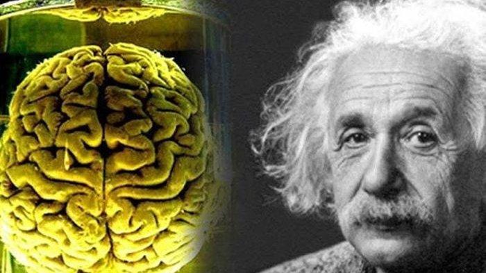 Kisah Pilu Albert Einstein, Baru Meninggal Otaknya Jadi Rebutan, Dipotong 240 Disimpan di Botol Jus