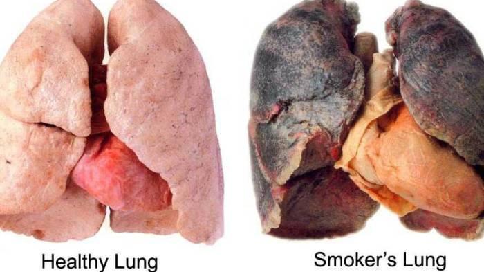 Perokok Wajib Baca! Makanan Ini Bisa Hilangkan Nikotin dari Dalam Tubuh