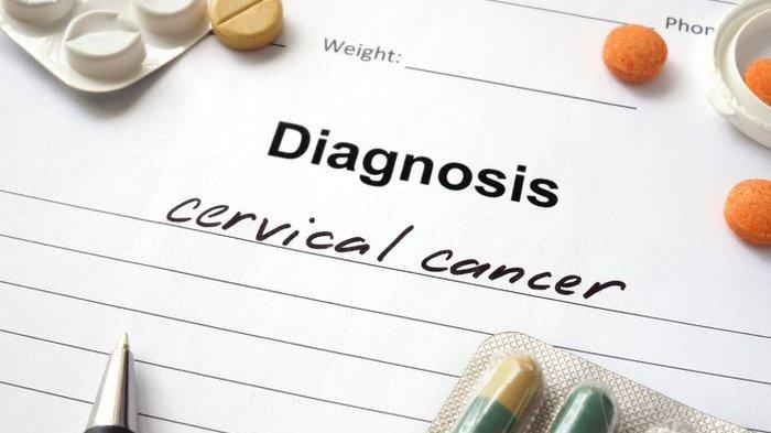 Kenali 5 Ciri-ciri Wanita yang Berisiko Terkena Kanker Serviks!