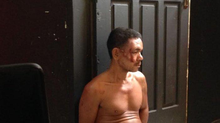Jimat Dilepas, Pencuri Ini Akhirnya Kesakitan Setelah Dihakimi Massa