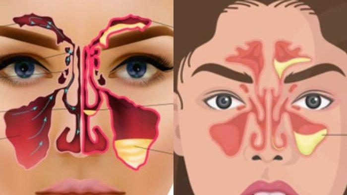 Jangan Anggap Remeh atau Mau Berakibat Fatal, Ini Dia Cara Ampuh Atasi Sinusitis!