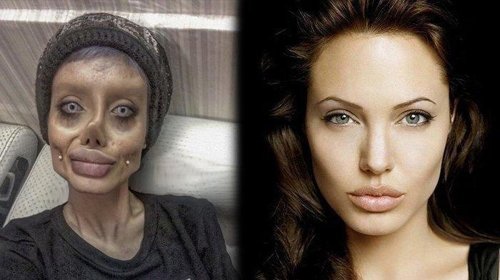 Fatemeh yang Operasi Plastik 50 Kali Demi Mirip Angelina Jolie Terinfeksi Covid-19 di Penjara
