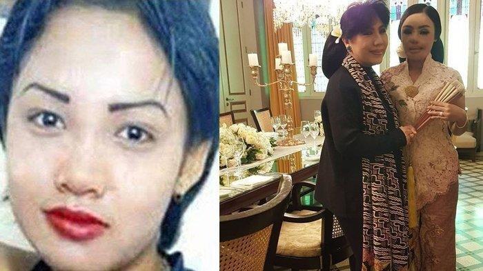 Setelah 16 Tahun Berlalu, Lisa Korban Siraman Air Keras Suami Kini Sukses di Bisnis Perhiasan