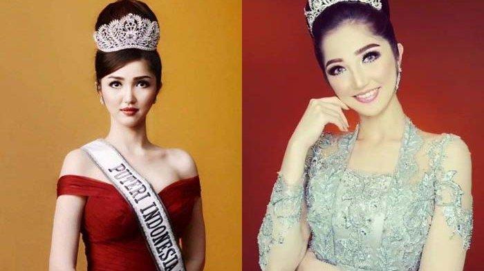 Pakai Mahkota Puteri Indonesia 2018 Kehidupan Sonia Berubah